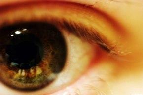 One World, One Vision: providing equitable care forretinoblastoma