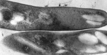 mycobacterium_tuberculosis_01